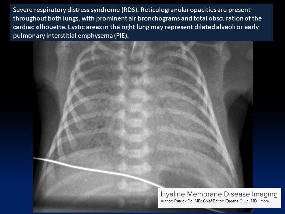 Severe respiratory distress syndrome (RDS).