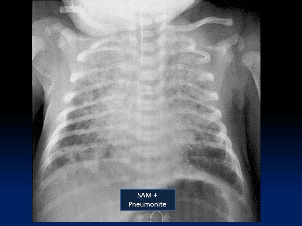 SAM + Pneumonite