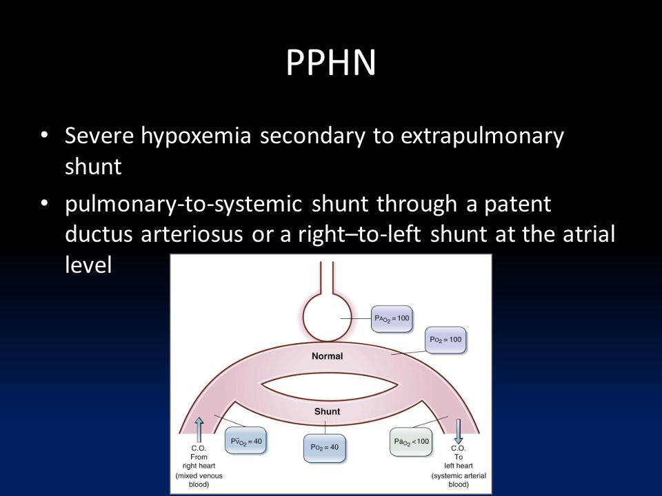 PPHN Severe hypoxemia secondary to extrapulmonary shunt pulmonary-to-systemic shunt through a patent ductus arteriosus or a right–to-left shunt at the atrial level