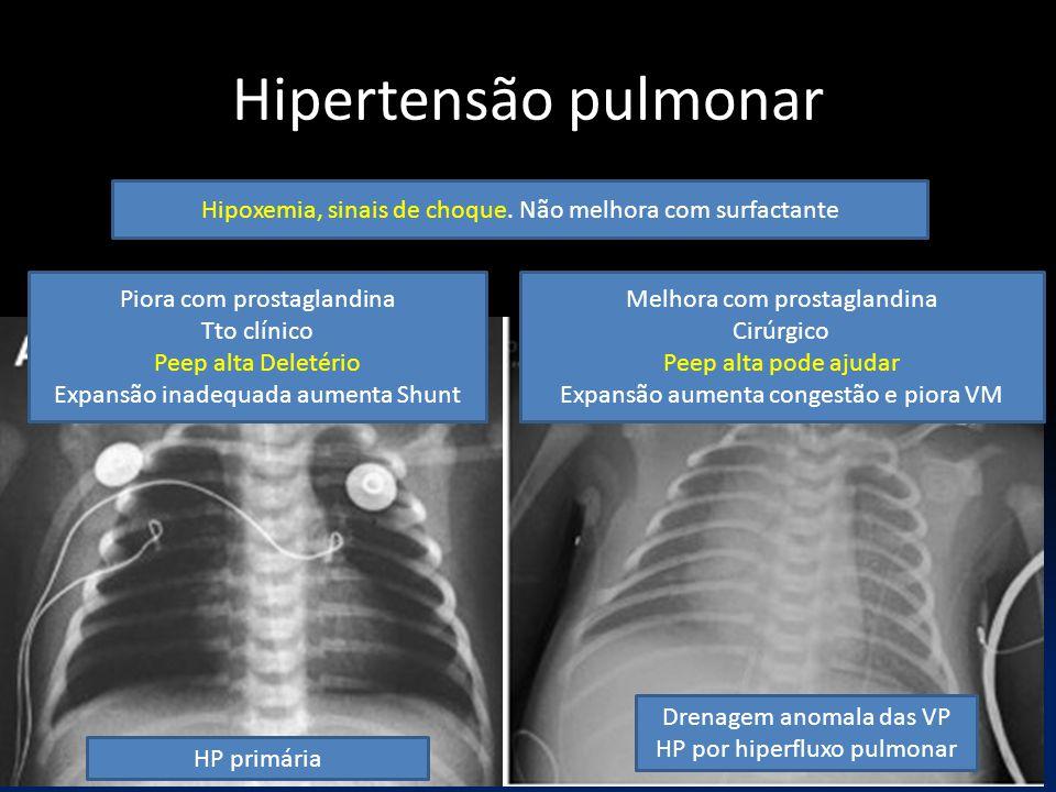 Hipertensão pulmonar Hipoxemia, sinais de choque. Não melhora com surfactante Piora com prostaglandina Tto clínico Peep alta Deletério Expansão inadeq