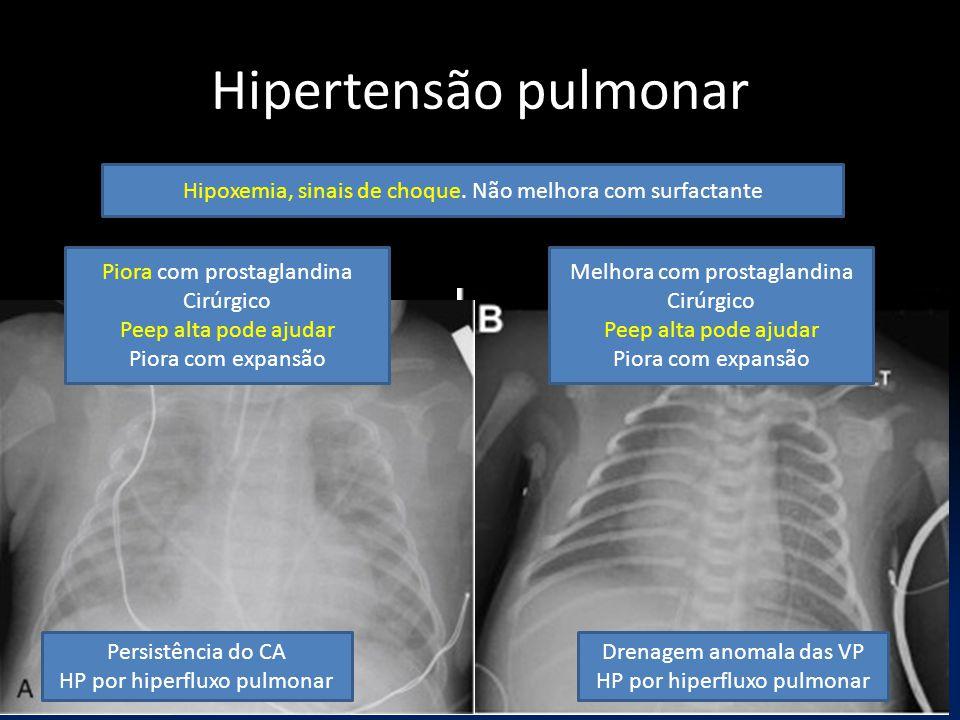 Hipertensão pulmonar Melhora com prostaglandina Cirúrgico Peep alta pode ajudar Piora com expansão Drenagem anomala das VP HP por hiperfluxo pulmonar Persistência do CA HP por hiperfluxo pulmonar Piora com prostaglandina Cirúrgico Peep alta pode ajudar Piora com expansão Hipoxemia, sinais de choque.