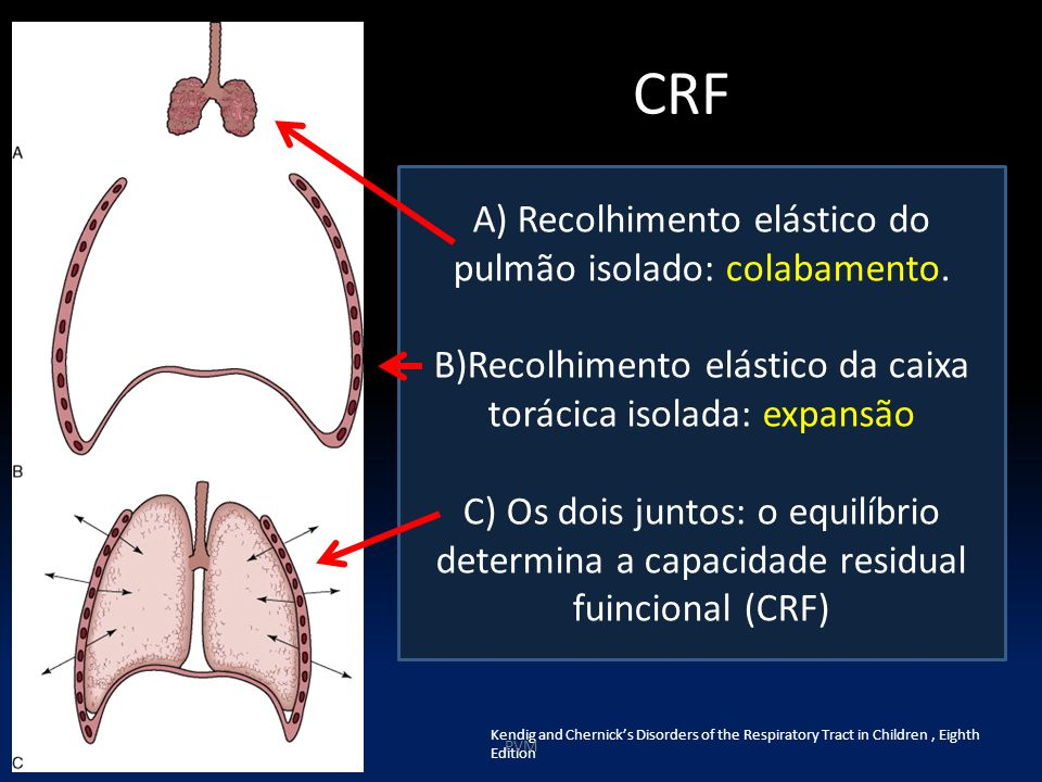 CRF Kendig and Chernick's Disorders of the Respiratory Tract in Children, Eighth Edition PVM A) Recolhimento elástico do pulmão isolado: colabamento.