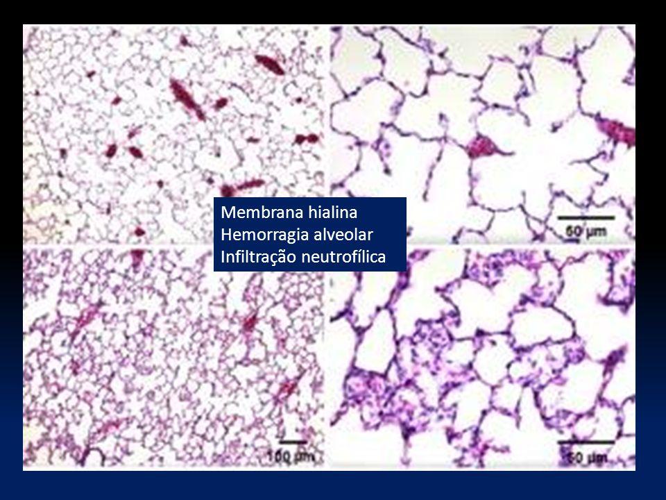 Membrana hialina Hemorragia alveolar Infiltração neutrofílica