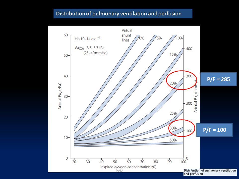 Distribution of pulmonary ventilation and perfusion P/F = 100 P/F = 285 PVM