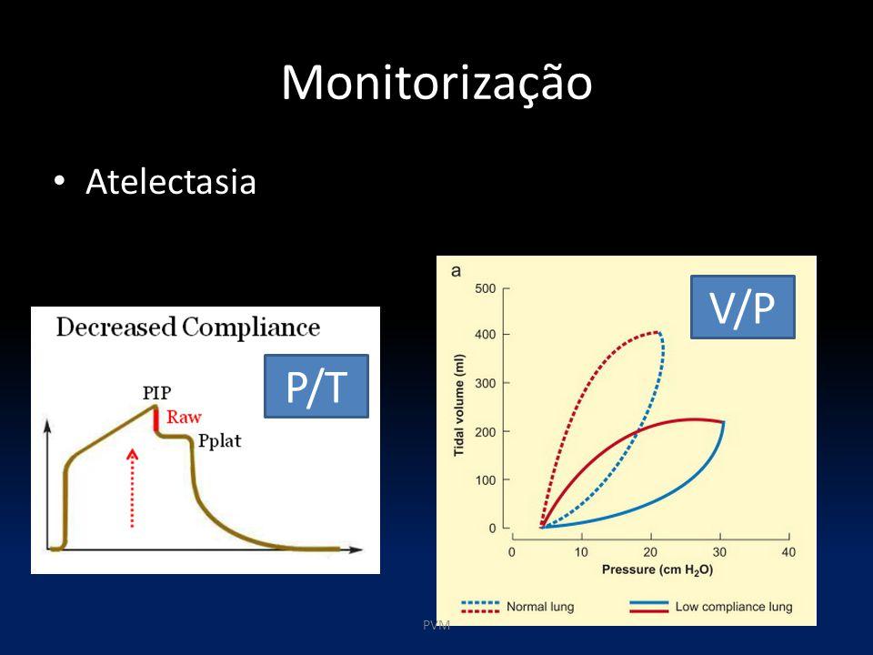 Monitorização Atelectasia P/T V/P PVM