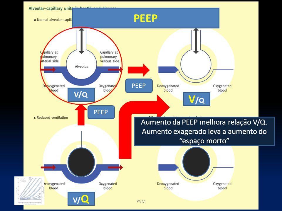 """PEEP V/ Q V/QV/Q PEEP PVM Aumento da PEEP melhora relação V/Q. Aumento exagerado leva a aumento do """"espaço morto"""""""