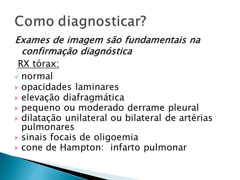 Exames de imagem são fundamentais na confirmação diagnóstica RX tórax: normal  opacidades laminares  elevação diafragmática  pequeno ou moderado derrame pleural  dilatação unilateral ou bilateral de artérias pulmonares  sinais focais de oligoemia  cone de Hampton: infarto pulmonar