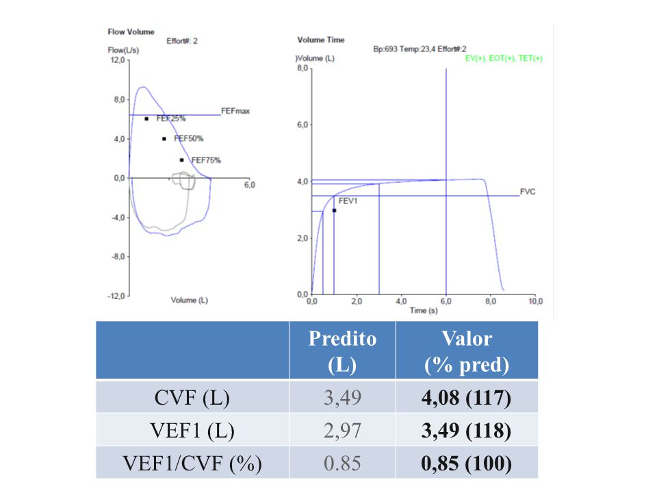 Predito (L) Valor (% pred) CVF (L)2,911,63 (56) VEF1 (L)2,200,47 (21) VEF1/CVF (%)0,760,29 (23)