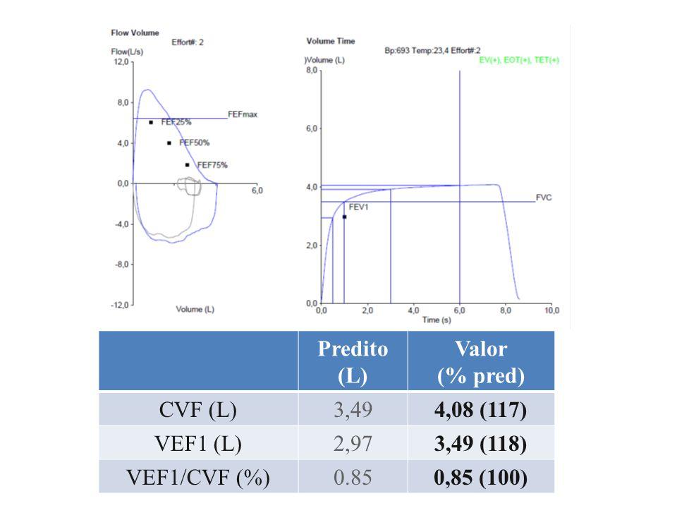 Predito (L) Valor (% pred) CVF (L)4,135,60 (136) VEF1 (L)3,352,17 (65) VEF1/CVF (%)0,810,39 (48) FEF 25-75% (L/s)3,481,76 (50) PEF (L/s)8,284,87 (59) A.B.C., masculino, 54 anos Dispneia e chiado no tórax há 4 anos