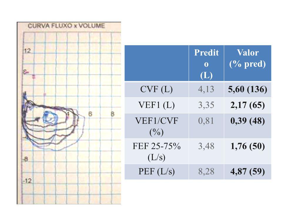 Predito (L) Valor (% pred) CVF (L)4,432,84 (64) VEF1 (L)3,532,25 (63) VEF1/CVF (%)0,800,80 (98) CPT (L)6,606,75 (102) VR (L)2,323,82 (165) CRF (L)3,584,57 (128) DLCO mL/min/mmHg 27,123,1 (85) VA6,604,86 (74) D.C., masculino, 58 anos, 177 cm, 88 kg Doença reumatoide – piora dispneia
