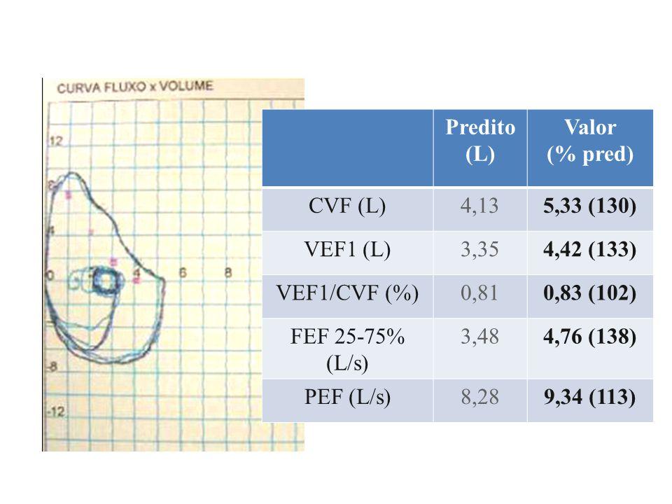 VEF1% Variação Basal3,90- 5 min3,40- 13 % 10 min3,10- 21 % 15 min3,60- 8 % Pós- Broncodilatador 3,85- 2 % Broncoprovocação Induzida Por Exercício Conclusão: Hiperresponsividade Brônquica Induzida por Exercício Caso : jovem atleta amador com dispnéia ao final dos treinamentos e piora de desempenho esportivo