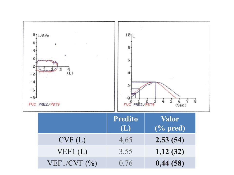 Predito (L) Valor (% pred) CVF (L)4,794,24 (88) VEF1 (L)3,932,91 (74) VEF1/CVF (%)0,820,69 (83)