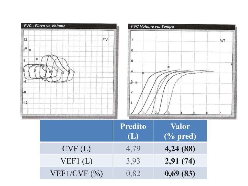 Real % Previsto Real % Previsto VEF1 (L) 2,7878 1,2040 CVF (L) 4,2494 1,9532 VEF1/CVF 0,6683 0,6181 FEF 25-75 (L/s) 1,5145 0,5518 CRF_N2 (L)1,9855 CPT_N2 (L)3,3567 VR_N2(L)1,4348 VTG_plets (L)4,96137 CPT_plets (L)6,3290 VR_plets (L)4,44204 VA (L)2,8541 DLco10,934 Exame Prévio Exame Atual