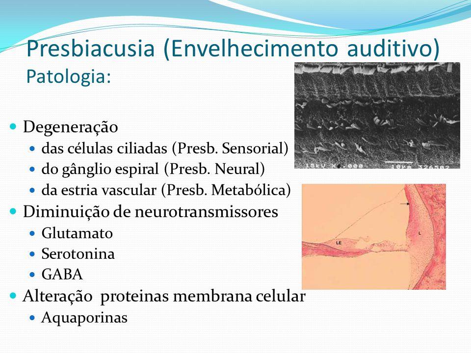 Presbiacusia (Envelhecimento auditivo) Patologia: Degeneração das células ciliadas (Presb. Sensorial) do gânglio espiral (Presb. Neural) da estria vas