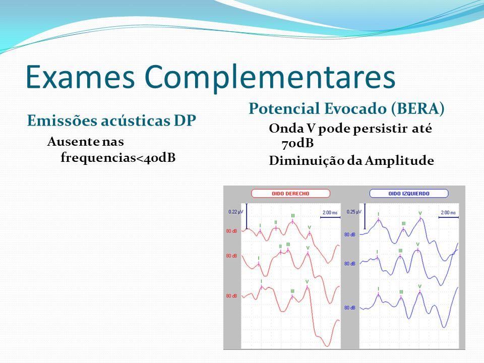 Exames Complementares Emissões acústicas DP Ausente nas frequencias<40dB Potencial Evocado (BERA) Onda V pode persistir até 70dB Diminuição da Amplitude