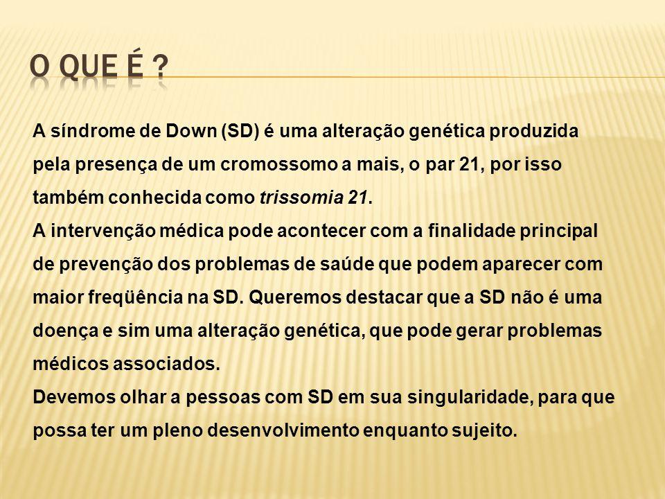A síndrome de Down (SD) é uma alteração genética produzida pela presença de um cromossomo a mais, o par 21, por isso também conhecida como trissomia 2
