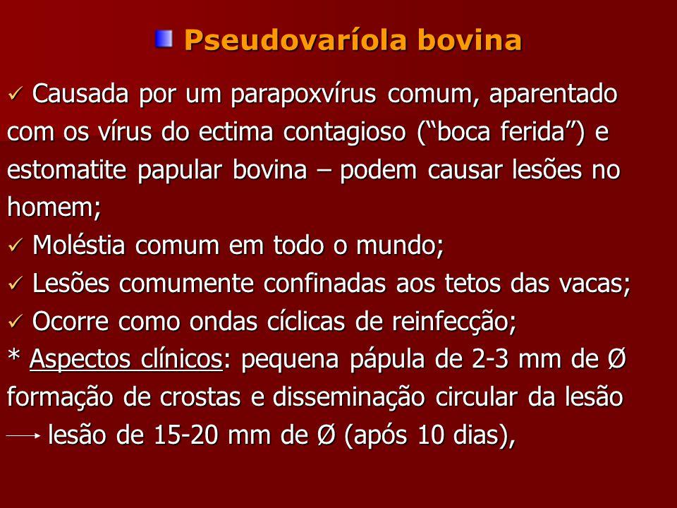 Pseudovaríola bovina Pseudovaríola bovina Causada por um parapoxvírus comum, aparentado Causada por um parapoxvírus comum, aparentado com os vírus do ectima contagioso ( boca ferida ) e estomatite papular bovina – podem causar lesões no homem; Moléstia comum em todo o mundo; Moléstia comum em todo o mundo; Lesões comumente confinadas aos tetos das vacas; Lesões comumente confinadas aos tetos das vacas; Ocorre como ondas cíclicas de reinfecção; Ocorre como ondas cíclicas de reinfecção; * Aspectos clínicos: pequena pápula de 2-3 mm de Ø formação de crostas e disseminação circular da lesão lesão de 15-20 mm de Ø (após 10 dias), lesão de 15-20 mm de Ø (após 10 dias),