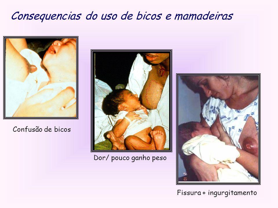 Consequencias do uso de bicos e mamadeiras Confusão de bicos Dor/ pouco ganho peso Fissura + ingurgitamento