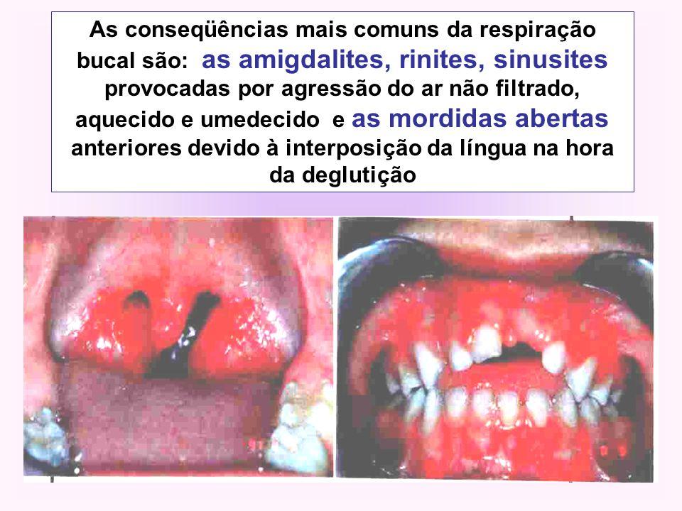 As conseqüências mais comuns da respiração bucal são: as amigdalites, rinites, sinusites provocadas por agressão do ar não filtrado, aquecido e umedec