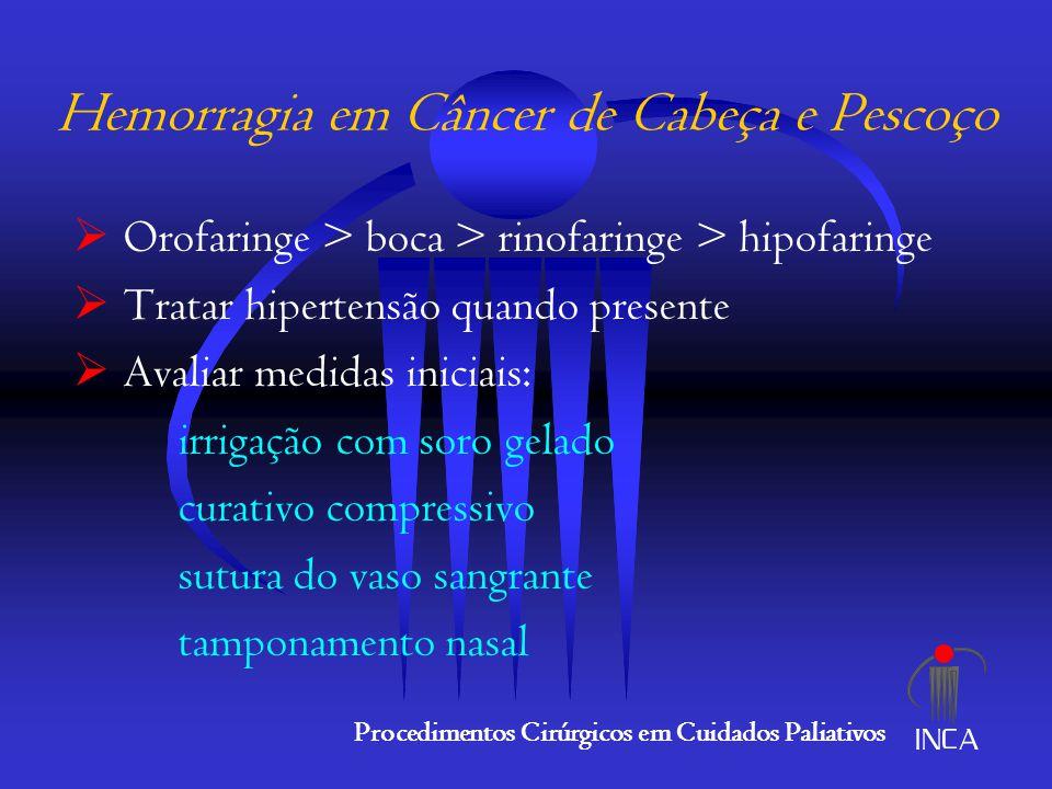 Sangramento em CA de Cabeça e Pescoço  Casos refratários / recidivantes: ligadura bilateral das aa.