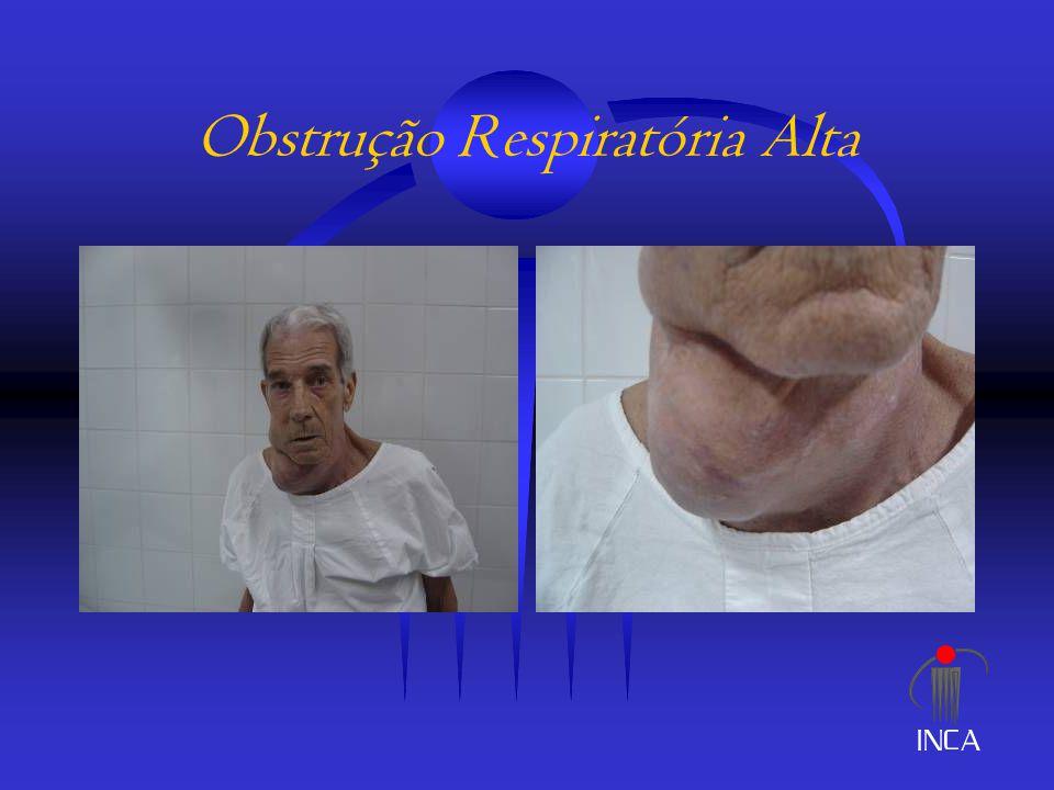 Obstrução Intestinal  Casos refratários – medidas definitivas: - cirurgia - ostomia - prótese Procedimentos Cirúrgicos em Cuidados Paliativos