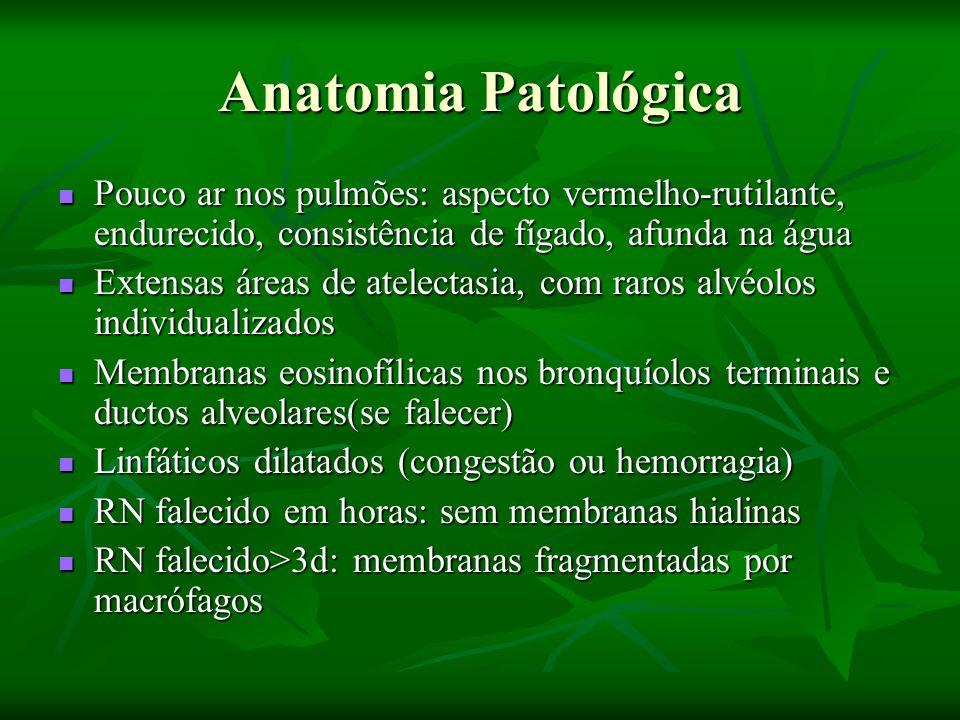 Anatomia Patológica Pouco ar nos pulmões: aspecto vermelho-rutilante, endurecido, consistência de fígado, afunda na água Pouco ar nos pulmões: aspecto vermelho-rutilante, endurecido, consistência de fígado, afunda na água Extensas áreas de atelectasia, com raros alvéolos individualizados Extensas áreas de atelectasia, com raros alvéolos individualizados Membranas eosinofílicas nos bronquíolos terminais e ductos alveolares(se falecer) Membranas eosinofílicas nos bronquíolos terminais e ductos alveolares(se falecer) Linfáticos dilatados (congestão ou hemorragia) Linfáticos dilatados (congestão ou hemorragia) RN falecido em horas: sem membranas hialinas RN falecido em horas: sem membranas hialinas RN falecido>3d: membranas fragmentadas por macrófagos RN falecido>3d: membranas fragmentadas por macrófagos