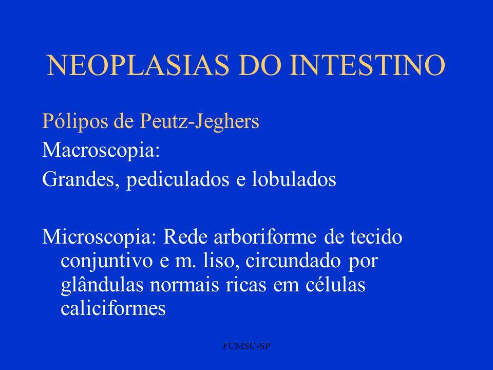 FCMSC-SP NEOPLASIAS DO INTESTINO Pólipos de Peutz-Jeghers Macroscopia: Grandes, pediculados e lobulados Microscopia: Rede arboriforme de tecido conjun