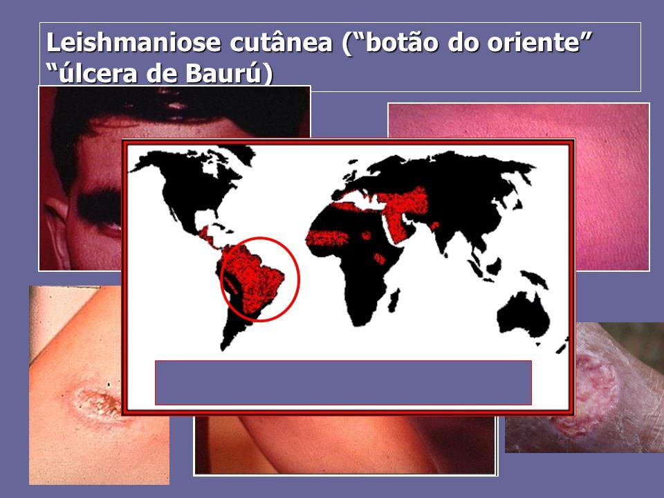 "Leishmaniose cutânea (""botão do oriente"" ""úlcera de Baurú)"