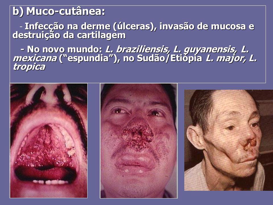 b)Muco-cutânea: b) Muco-cutânea: Infecção na derme (úlceras), invasão de mucosa e destruição da cartilagem - Infecção na derme (úlceras), invasão de m