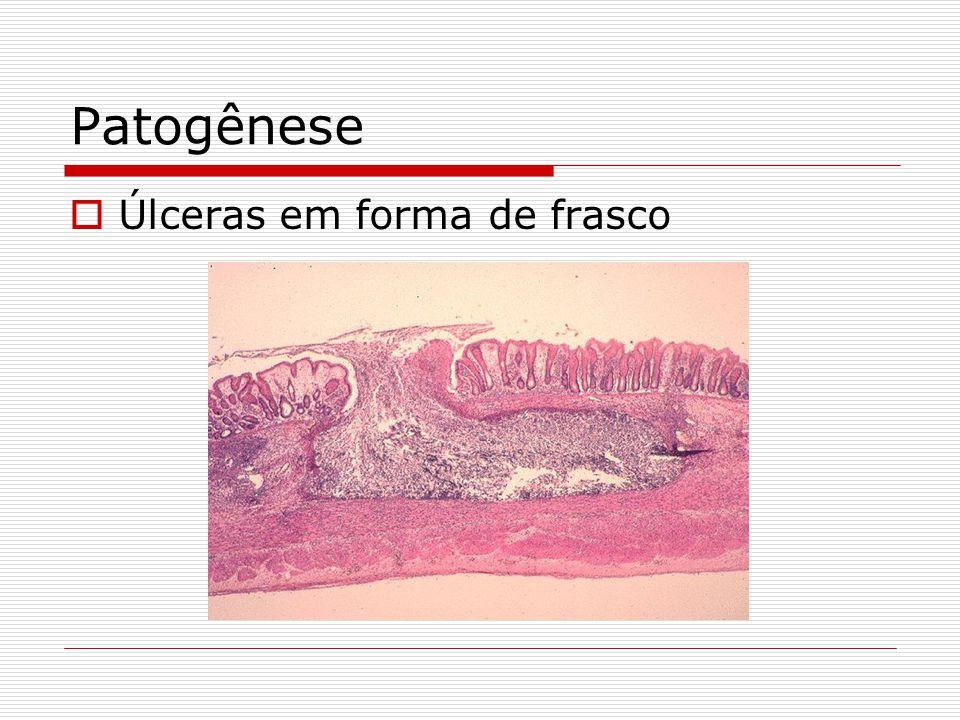Patogênese  Úlceras em forma de frasco