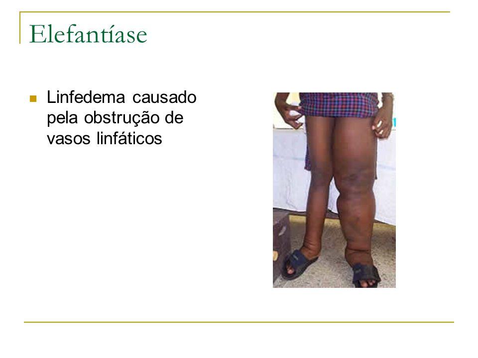 Elefantíase Linfedema causado pela obstrução de vasos linfáticos