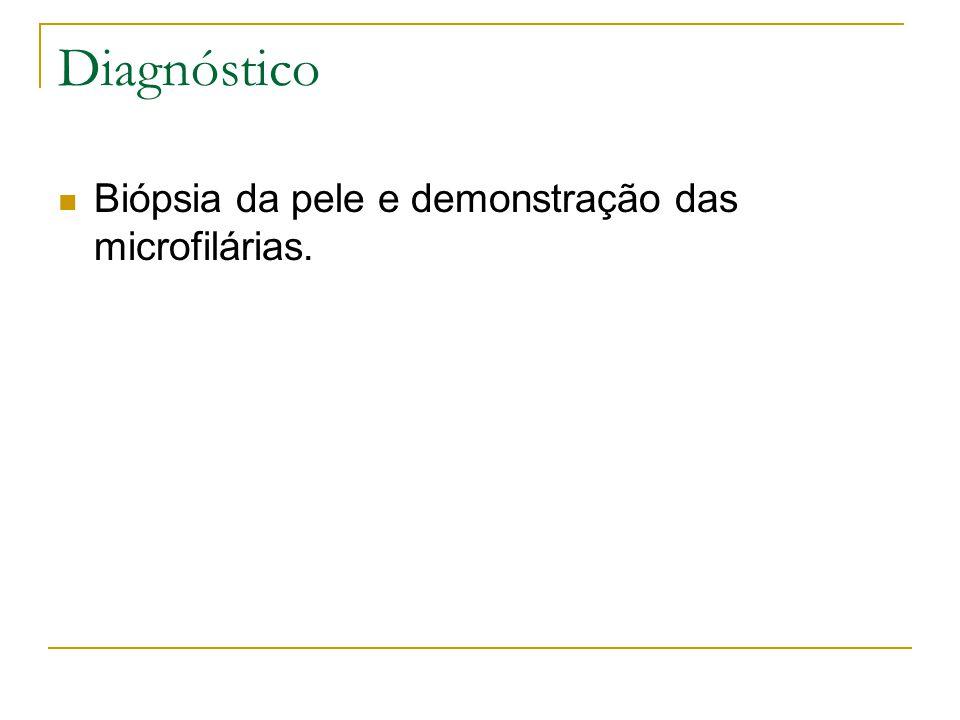 Diagnóstico Biópsia da pele e demonstração das microfilárias.