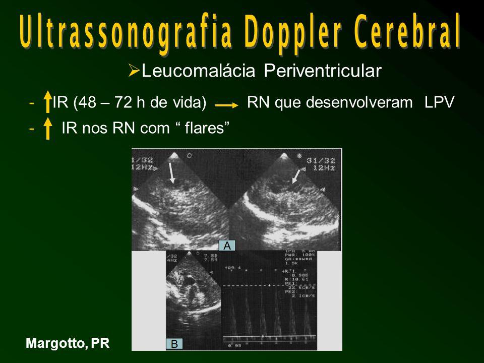  Leucomalácia Periventricular - IR (48 – 72 h de vida)RN que desenvolveram LPV - IR nos RN com flares Margotto, PR