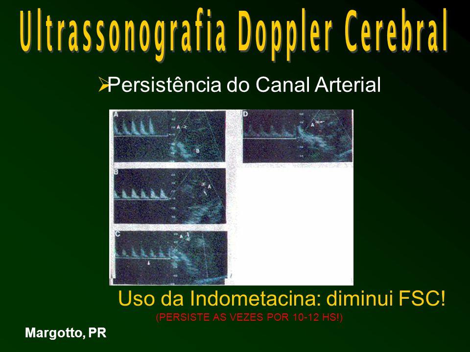 Margotto, PR  Persistência do Canal Arterial Uso da Indometacina: diminui FSC.