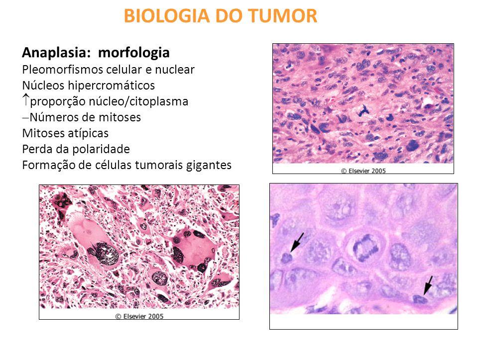 BIOLOGIA DO TUMOR Anaplasia: morfologia Pleomorfismos celular e nuclear Núcleos hipercromáticos  proporção núcleo/citoplasma  Números de mitoses Mitoses atípicas Perda da polaridade Formação de células tumorais gigantes
