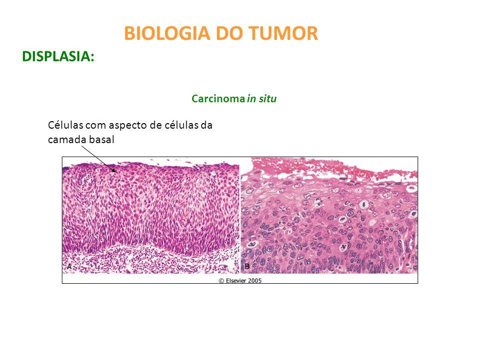 BIOLOGIA DO TUMOR DISPLASIA: Carcinoma in situ Células com aspecto de células da camada basal