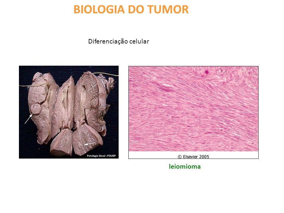 BIOLOGIA DO TUMOR Anaplasia: perda total do fenótipo diferenciado adenocarcinoma tecido normal