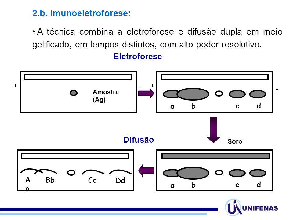 2.b. Imunoeletroforese: A técnica combina a eletroforese e difusão dupla em meio gelificado, em tempos distintos, com alto poder resolutivo. ++ - - Am