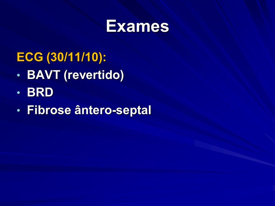 Exames ECG (30/11/10): BAVT (revertido) BAVT (revertido) BRD BRD Fibrose ântero-septal Fibrose ântero-septal