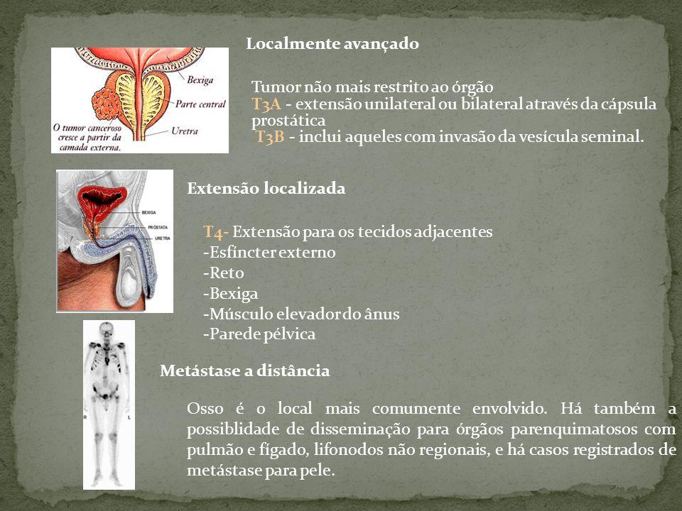 Localmente avançado Extensão localizada Metástase a distância Tumor não mais restrito ao órgão T3A - extensão unilateral ou bilateral através da cápsula prostática T3B - inclui aqueles com invasão da vesícula seminal.