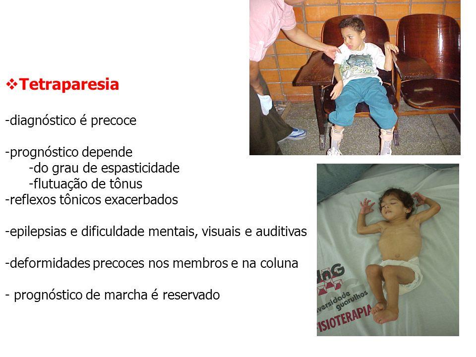  Tetraparesia -diagnóstico é precoce -prognóstico depende -do grau de espasticidade -flutuação de tônus -reflexos tônicos exacerbados -epilepsias e d