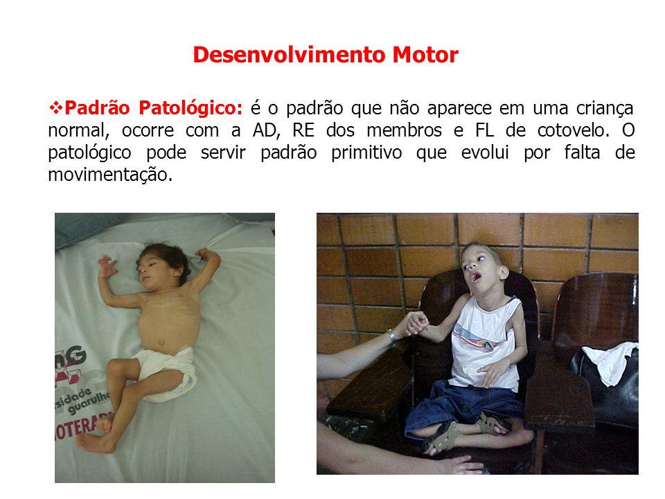 Desenvolvimento Motor  Padrão Patológico: é o padrão que não aparece em uma criança normal, ocorre com a AD, RE dos membros e FL de cotovelo. O patol