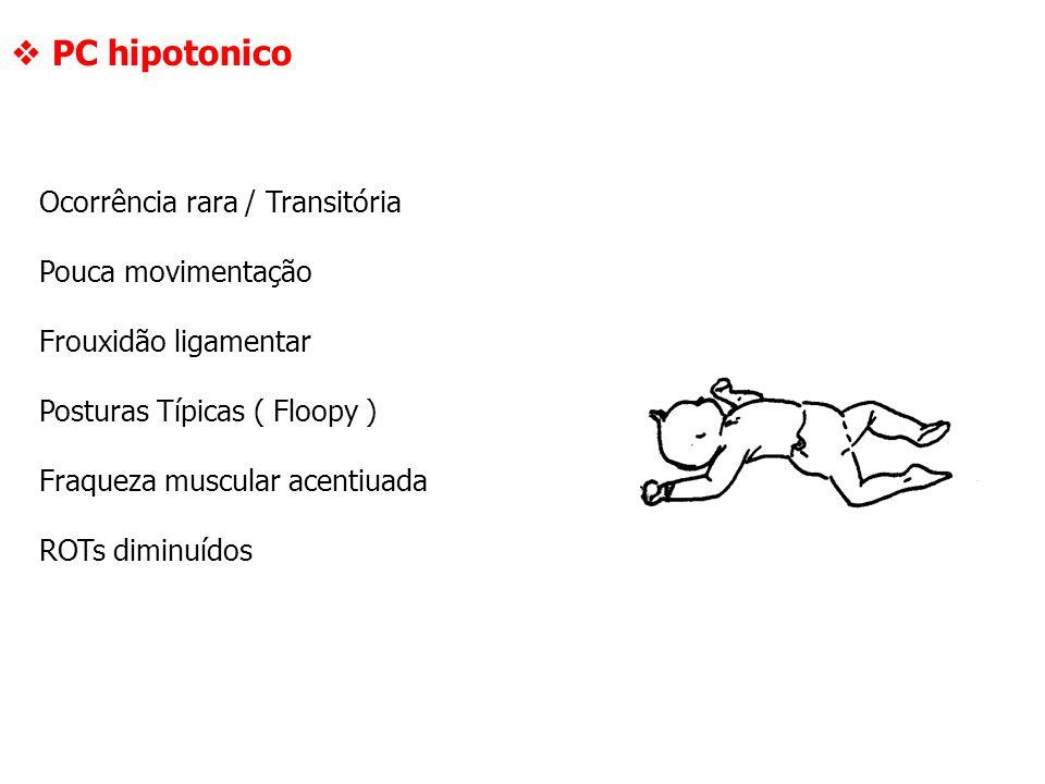  PC hipotonico Ocorrência rara / Transitória Pouca movimentação Frouxidão ligamentar Posturas Típicas ( Floopy ) Fraqueza muscular acentiuada ROTs di