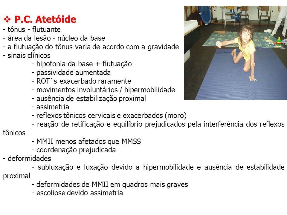  P.C. Atetóide - tônus - flutuante - área da lesão - núcleo da base - a flutuação do tônus varia de acordo com a gravidade - sinais clínicos - hipoto