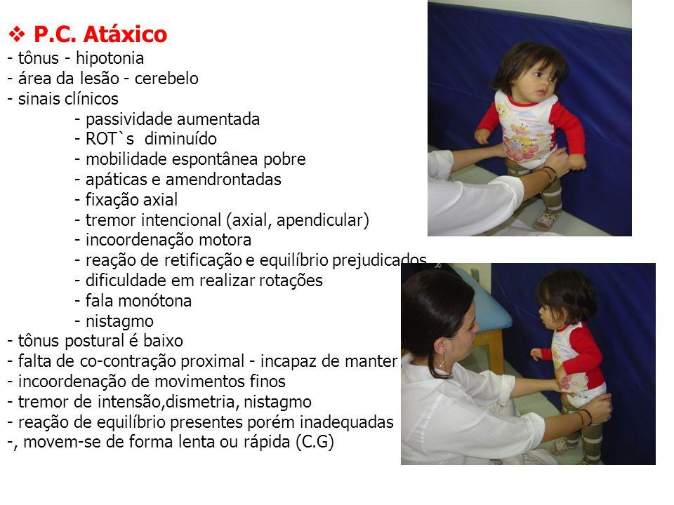  P.C. Atáxico - tônus - hipotonia - área da lesão - cerebelo - sinais clínicos - passividade aumentada - ROT`s diminuído - mobilidade espontânea pobr