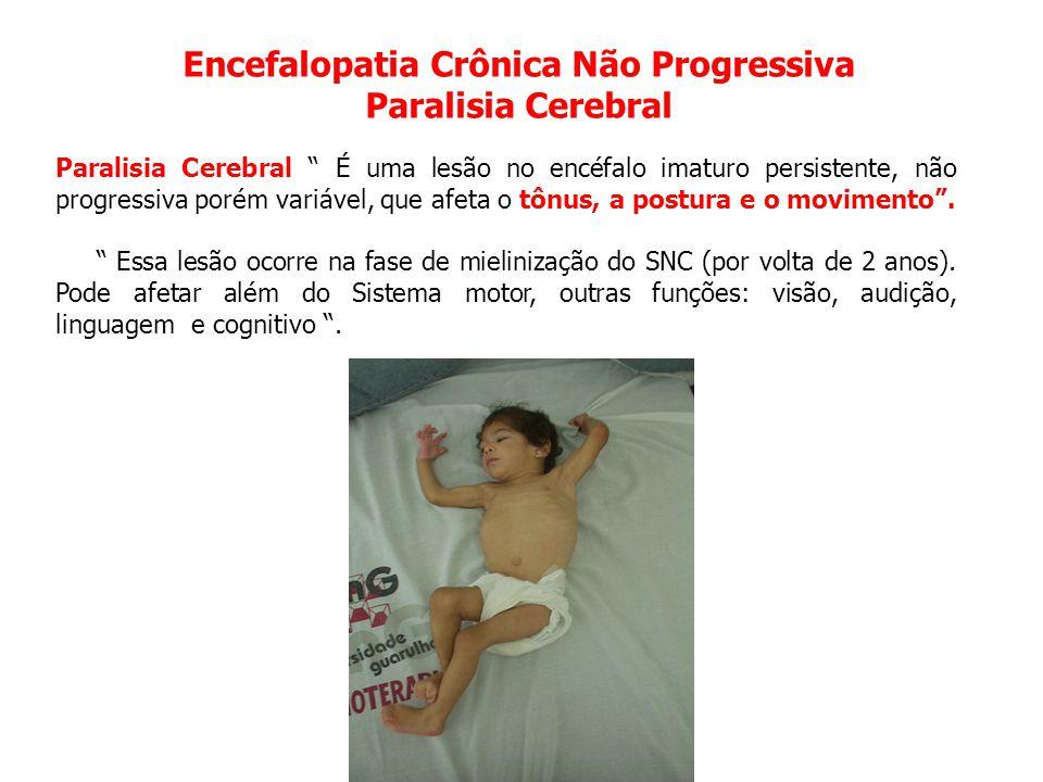 """Encefalopatia Crônica Não Progressiva Paralisia Cerebral Paralisia Cerebral """" É uma lesão no encéfalo imaturo persistente, não progressiva porém variá"""