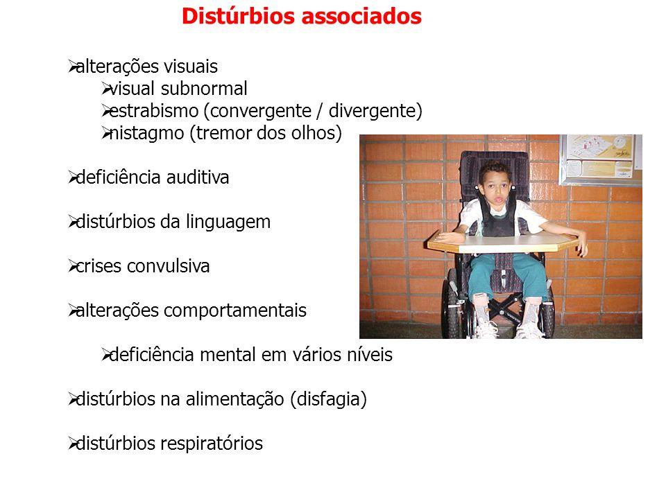 Distúrbios associados  alterações visuais  visual subnormal  estrabismo (convergente / divergente)  nistagmo (tremor dos olhos)  deficiência audi