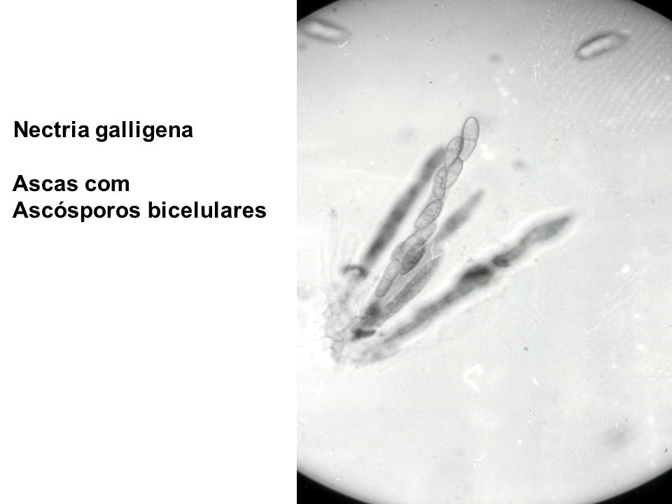 Nectria galligena Ascas com Ascósporos bicelulares