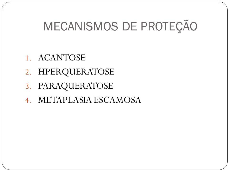 MECANISMOS DE PROTEÇÃO 1. ACANTOSE 2. HPERQUERATOSE 3. PARAQUERATOSE 4. METAPLASIA ESCAMOSA