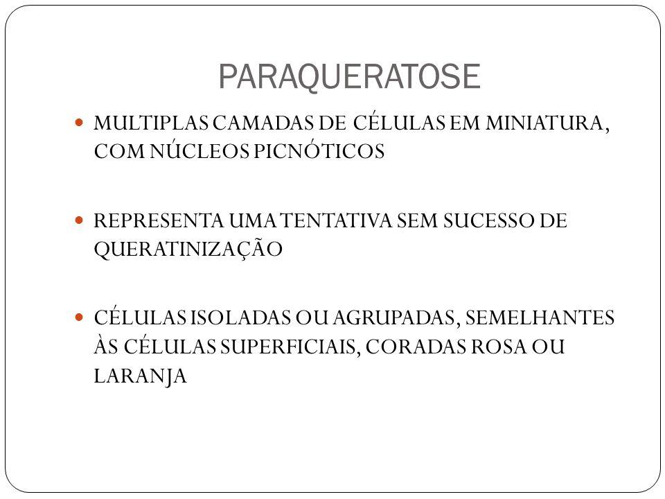 PARAQUERATOSE MULTIPLAS CAMADAS DE CÉLULAS EM MINIATURA, COM NÚCLEOS PICNÓTICOS REPRESENTA UMA TENTATIVA SEM SUCESSO DE QUERATINIZAÇÃO CÉLULAS ISOLADAS OU AGRUPADAS, SEMELHANTES ÀS CÉLULAS SUPERFICIAIS, CORADAS ROSA OU LARANJA